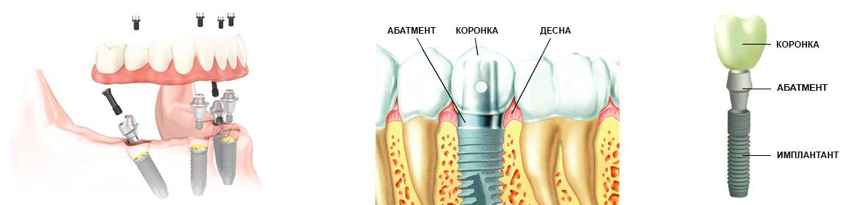implantant1